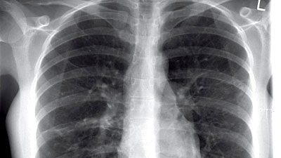 how to get rid of dust in lungs