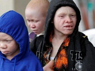 Tanzanian albinos